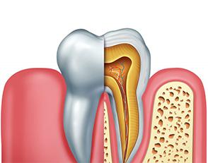 Carie dentale 1