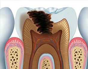 Carie dentale 4