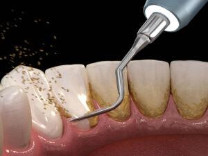 Igiene Orale 1