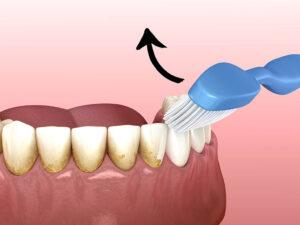 Igiene Orale 2
