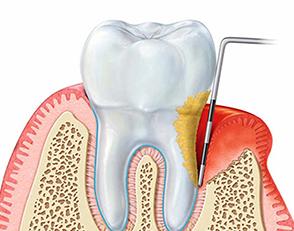 Parodontologia 1