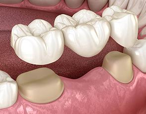 Protesi dentaria 1