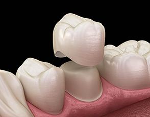 Protesi dentaria 2