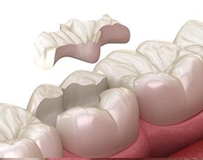 Protesi dentaria 3